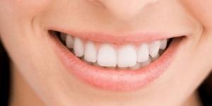 Información sobre Blanqueamiento Dental. CEM Valderas dentistas en Alcorcón