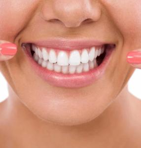 Blanqueamiento Dental Alcorcón. CEM Valderas Clinica Dental y Centro Médico