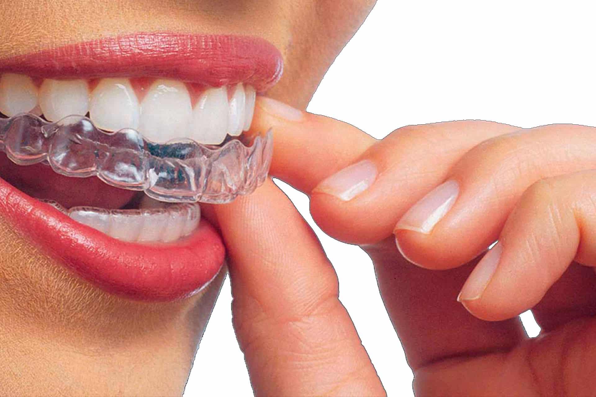 Invisalign Alcorcón. Ortodoncia invisible con financiación en Clínica Dental CEM Valderas