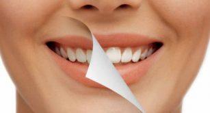 Blanqueamiento dental Alcorc贸n CEM Valderas Dentistas econ贸micos Alcorc贸n