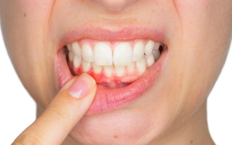 Dentistas en Alcorcón. Gingivitis tratamiento y cuidados. CEM Valderas Odontólogos en Alcorcón