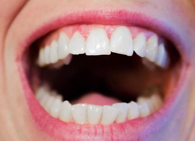 Dentistas Alcorcón: Desmentimos los mitos más arraigados sobre los dientes