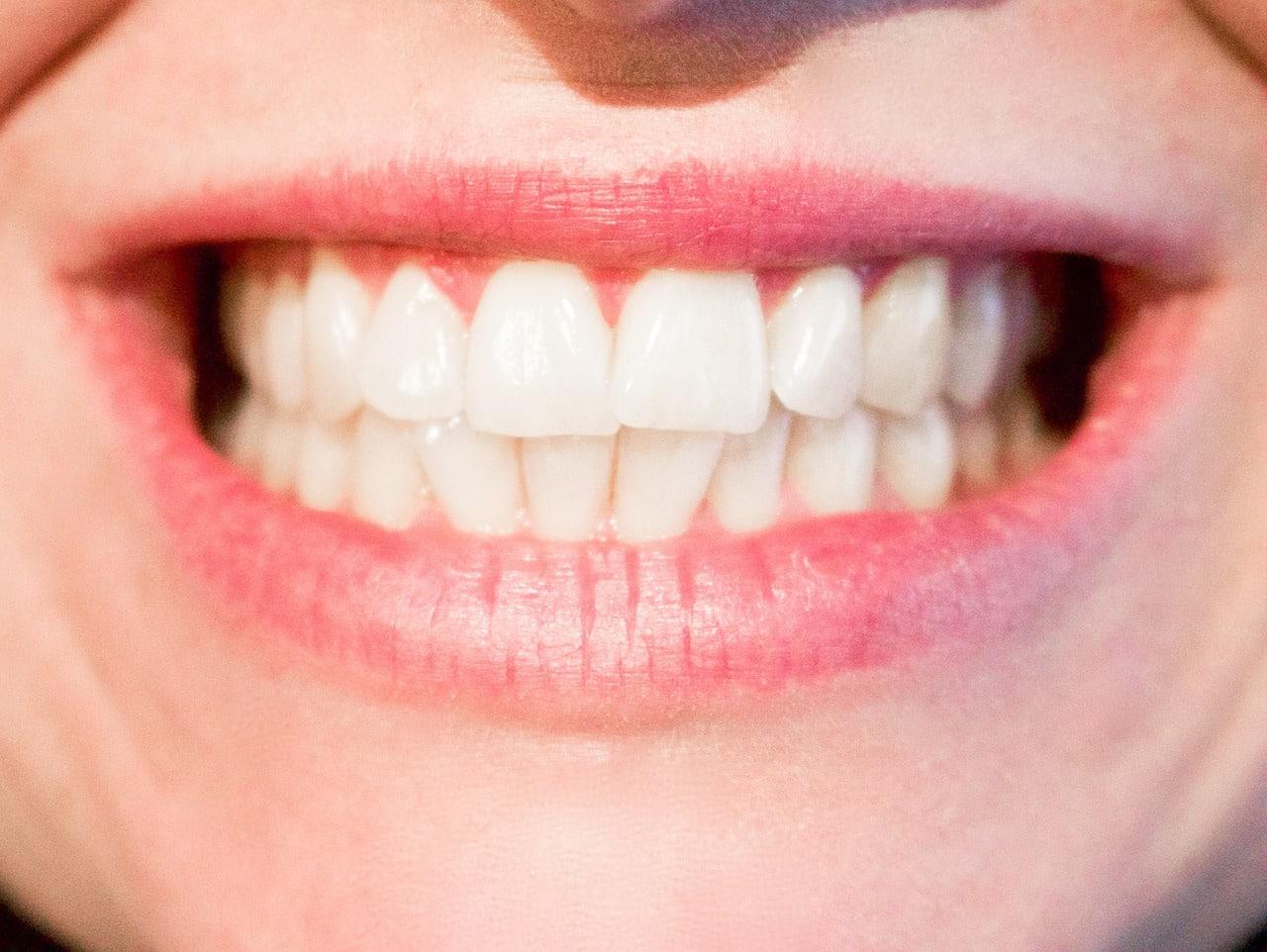 Endodoncia Alcorcón CEM Calderas Dentistas en Alcorcón. Financiación a medida