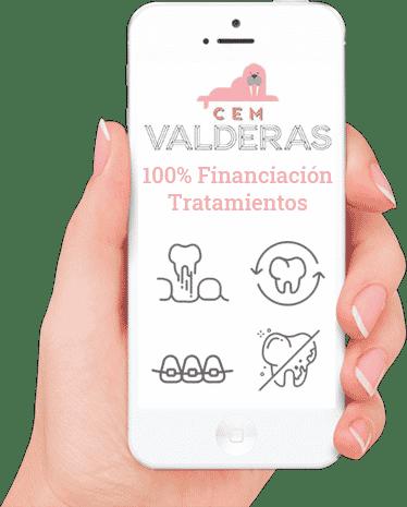 100% Financiación tratamientos dentales Alcorcon. Clinica Dental CEM Valderas. Financiamos tus tratamientos dentales y estéticos