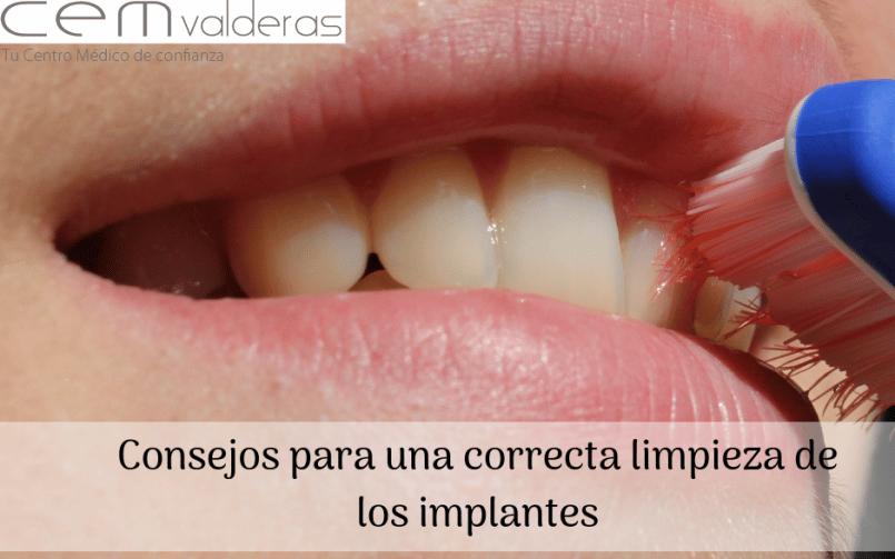 CEM Valderas Dentistas Alcorcón. Consejos para una correcta limpieza de los implantes