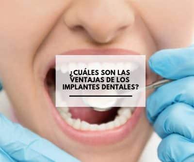 ¿Cuales son las Ventajas de los implantes dentales?. CEM Valderas Dentistas en Alcorcón