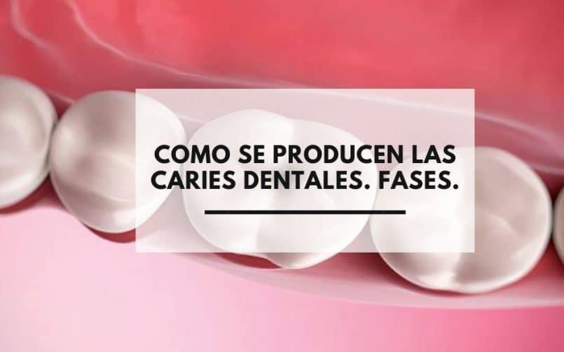 Dentistas Alcorcón. ¿Como se prodcucen las caries dentales?. Fases