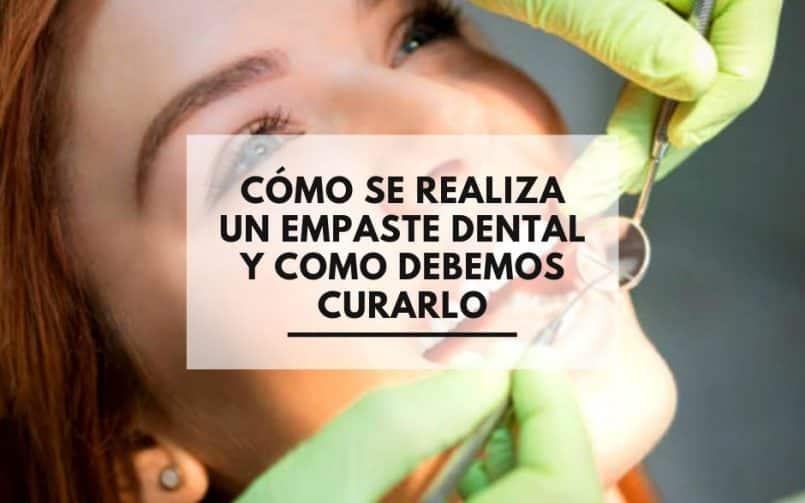 Clínica Dental Alcorcón CEM Valderas. Como se Realiza un empaste dental y como curarlo