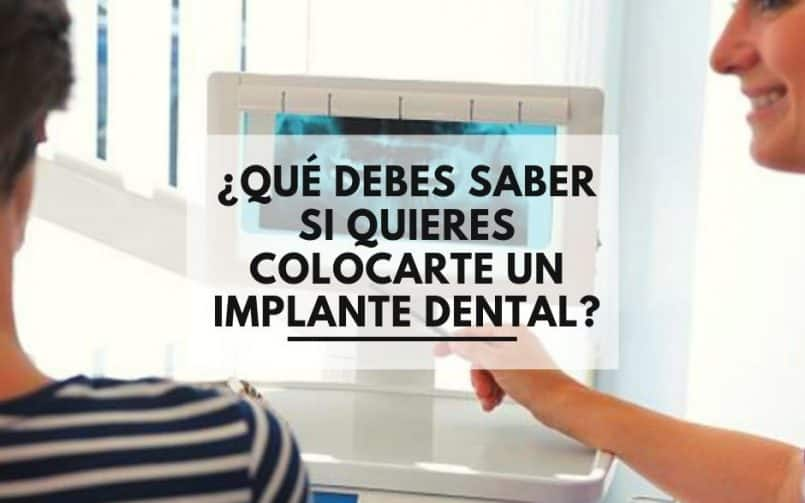 implantes dentales ¿Qué debes saber si quieres colocarte un implante dental?