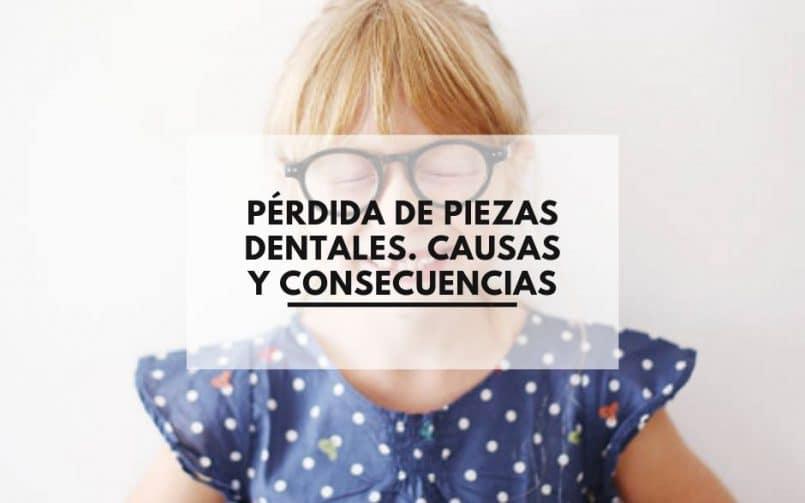 Consecuencia de la perdida de piezas dentales. Clínica Dental CEM Valderas Dentistas en Alcorcón