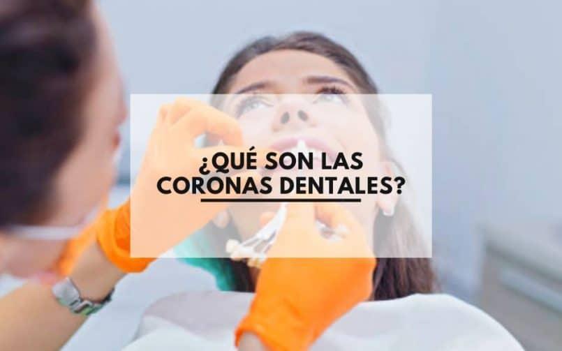 ¿Que son las coronas dentales?. Clinica Dental CEM Valderas Odontologos en Alcorcón