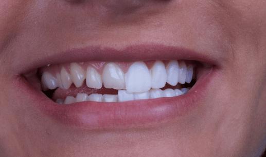 Pasos para colocar carillas de porcelana. CEM Valderas clínica dental en Alcorcón