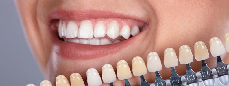 Las carillas dentales son cubiertas delgadas que se adhieren a los dientes. Clínica Dental CEM Calderas expertos en tratamientos de estética dental