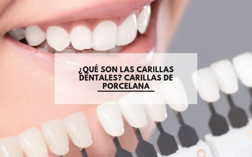 ¿Qué son las carillas dentales? Carillas de porcelana. CEM Calderas Clínica Dental Alcorcón