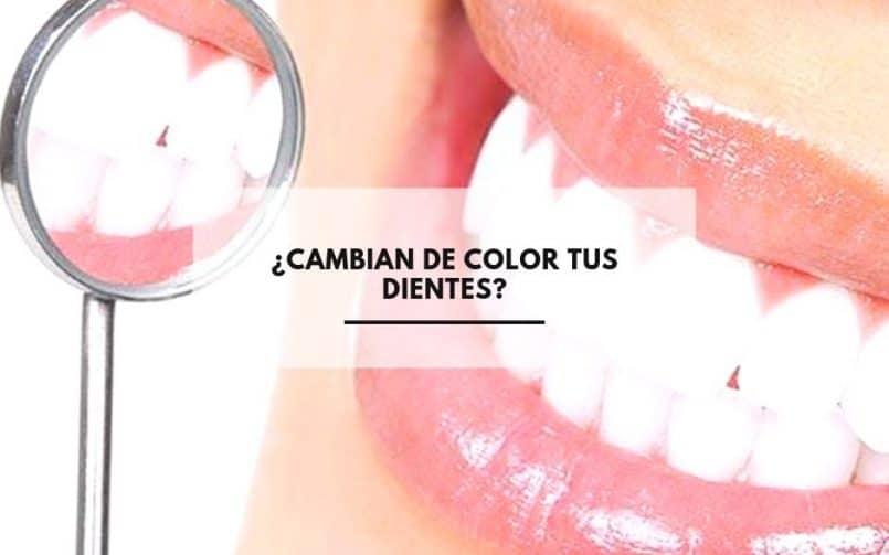 ¿Cambian de Color tus Dientes?. CEM Calderas Clínica Dental en Alcorcón