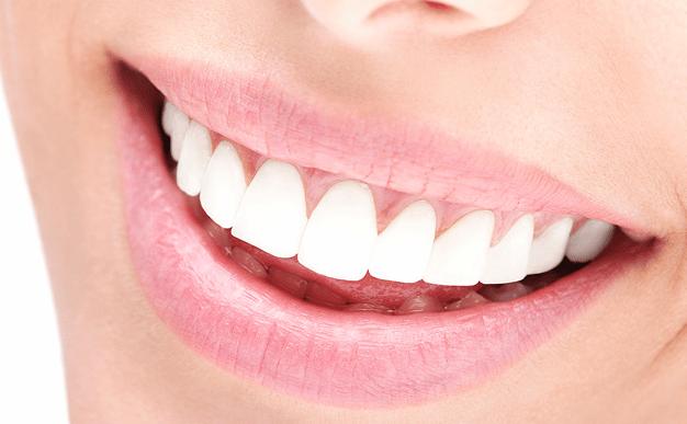 Peróxido de hidrógeno para blanquear los dientes: ¿Qué debes saber?. CEM Valderas Dentistas Alcorcón.