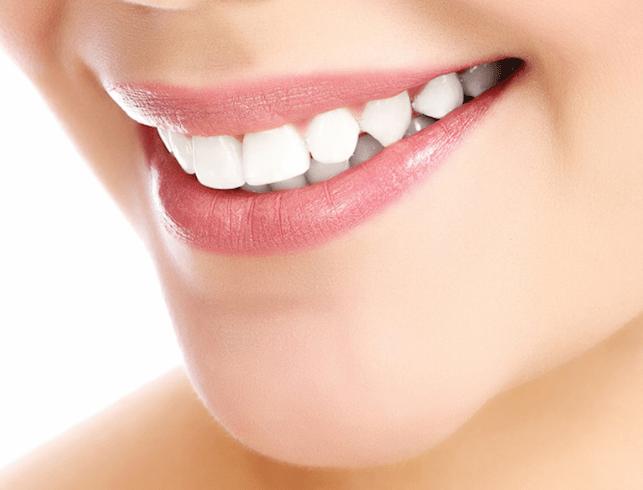 Efectos negativos del Peróxido de hidrógeno para blanquear los dientes. CEM Valderas odontologos en Alcorcón