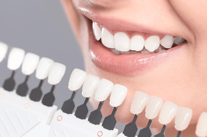 Peróxido de hidrógeno para blanquear los dientes: ¿Qué debes saber?. Nuestros dentistas en Alcorcón te lo cuentan. CEM Valderas Clínica Dental en Alcorcón, Mostoles, Leganés, Fuenlabrada, Getafe, Parla