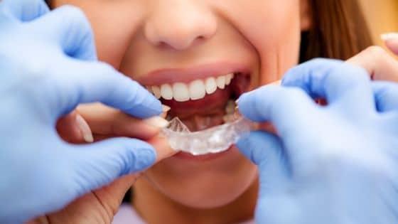 5 razones por las que son importantes los retenedores dentales. CEM Valdera dentistas en Alcorcón - Tratamientos de Ortodoncia