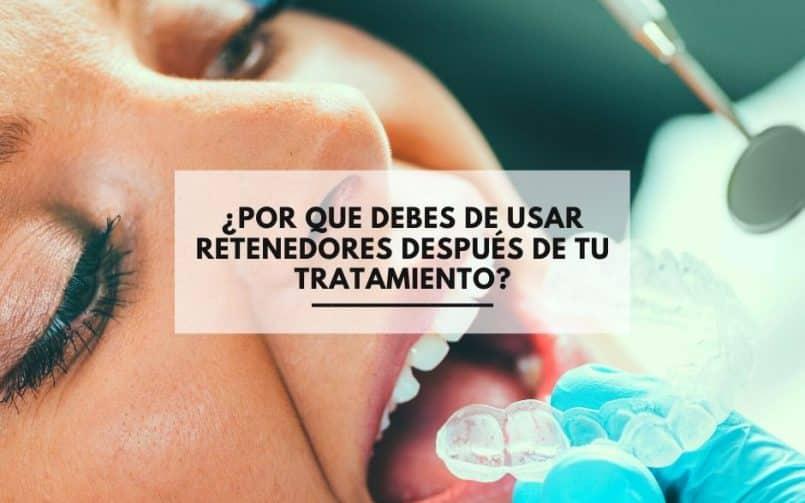¿Por que debes de usar retenedores después de tu tratamiento de ortodoncia?. Clinica Dental Alcorcón CEM Valderas tratamientos ortodoncia baratos